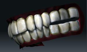 汚い歯ですな。